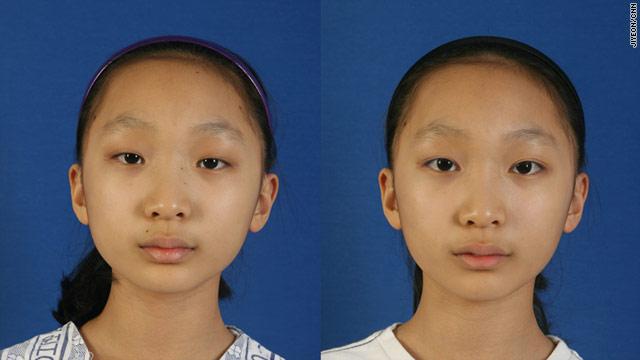 """La cirugía plástica """"cambia la cara"""" de Asia"""