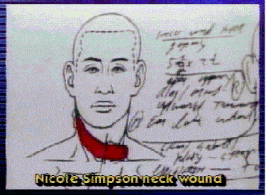 Nicole Brown Simpson Autopsy Charts