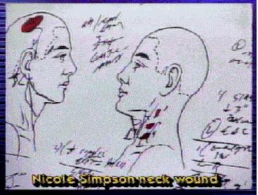 Pics Photos - Nicole Brown Simpson Autopsy Charts Picture Oj Simpson Crime Scene Photos