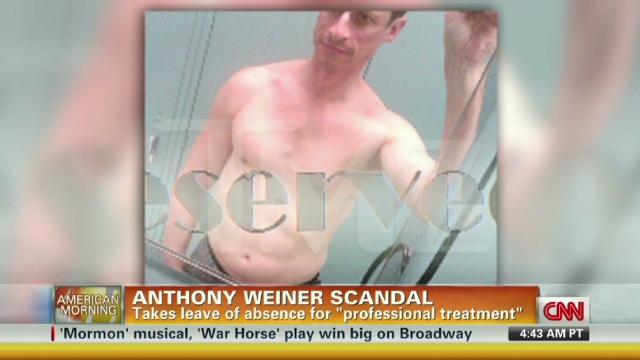Wiener sex scandal