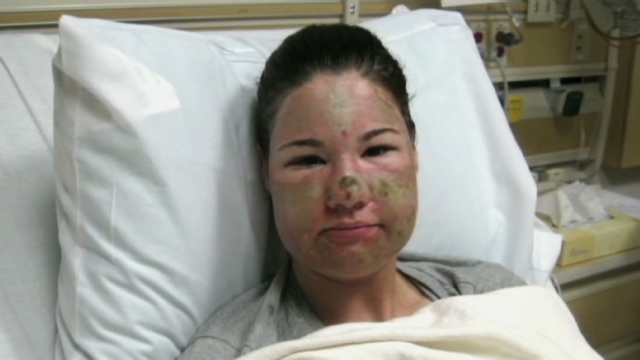 Woman In Fake Acid Attack Charged With Theft Cnn Com
