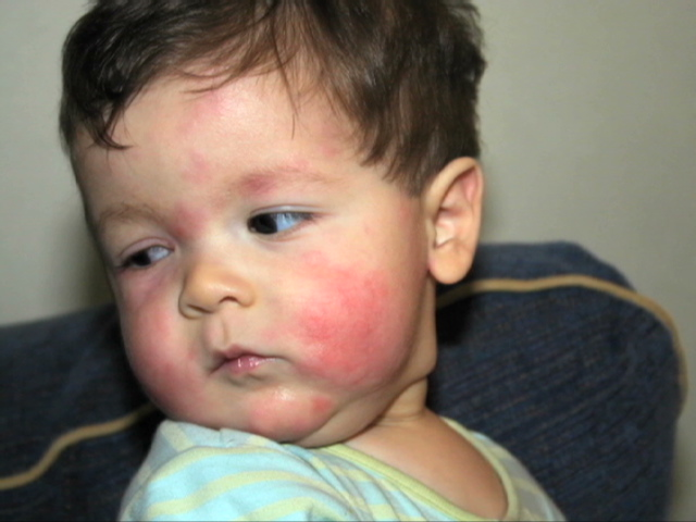 How to predict biphasic allergic reactions in children
